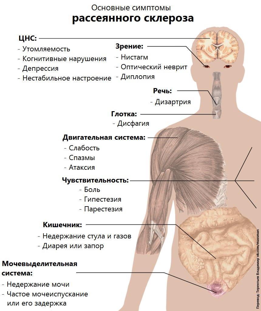 Чем снять головокружение при рассеянном склерозе